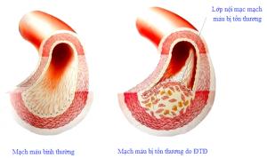 Tác dụng của nước Kangen với bệnh tiểu đường