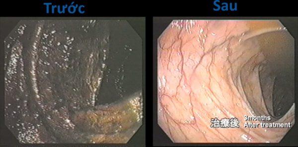 Bác sĩ Hiromi Shinya cho bệnh nhân dùng nước ion kiềm để hỗ trợ điều trị bệnh ung thư. Bên trái là hình ảnh ruột trước khi dùng nước ion kiềm, thành ruột có màu đen. Bên phải là hình ảnh ruột trước sau 90 dùng nước kiềm, thành ruột sáng màu hơn, hồng hào hơn.